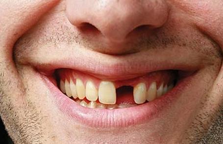 Zahn fehlt